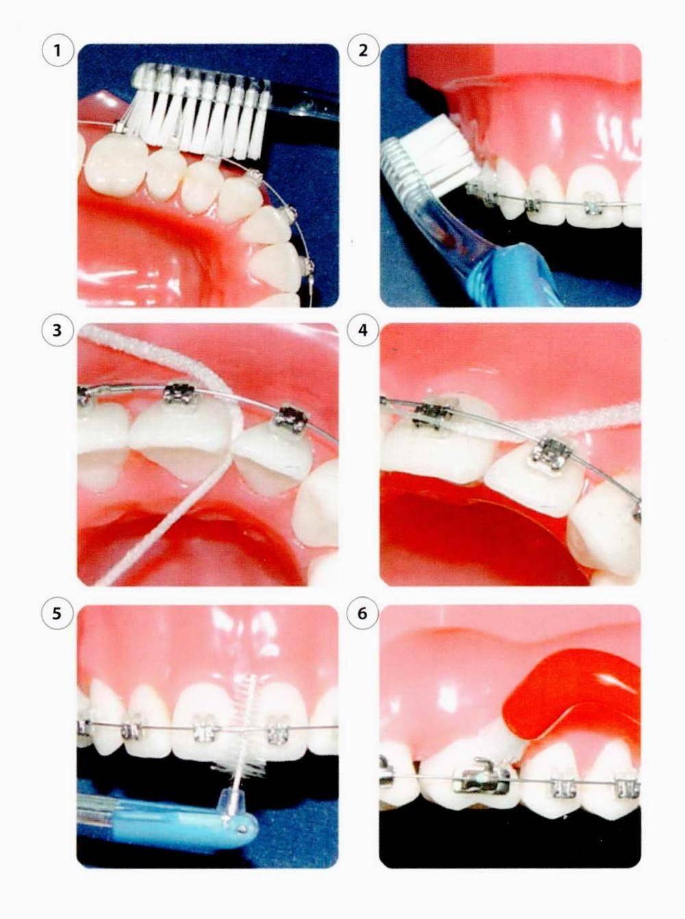 Набор для брекетов на зубах: инструменты и аппараты, средства ухода и чистки, ортодонтический комплект президент, ополаскиватель