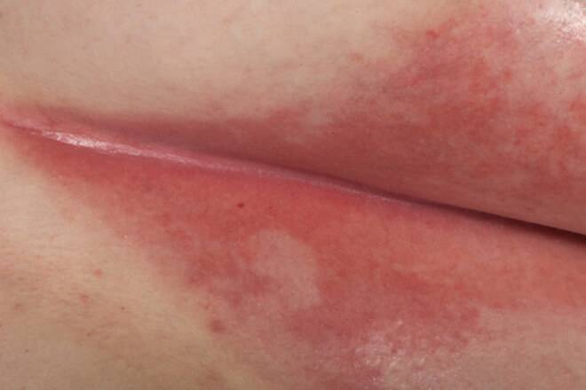 Грибковый пеленочный дерматит лечение у ребенка