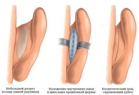 торчат уши как исправить без операции