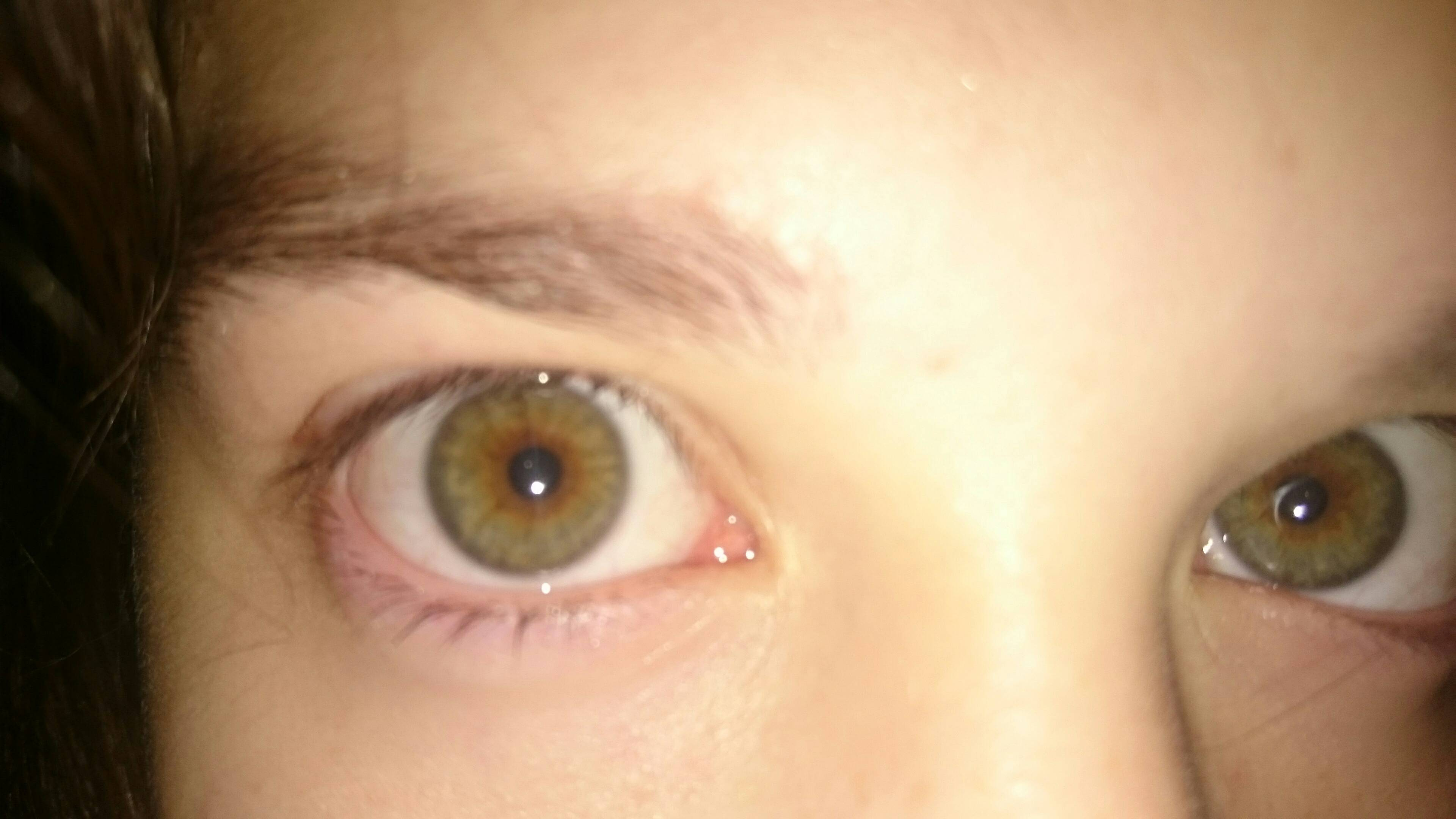 По каким симптомам определяется наличие в глазах человека паразитов