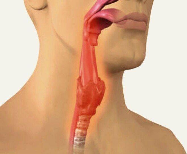 Причины и лечение слизи в горле в домашних услових