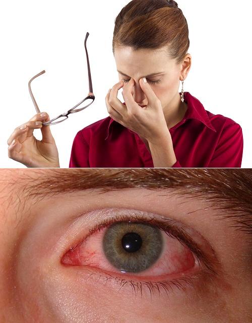 сухость в глазах лечение народными средствами