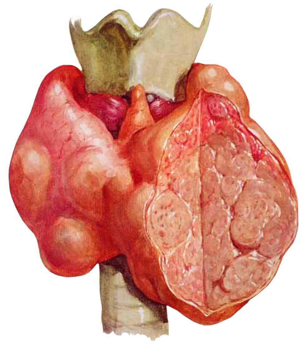 Зоб щитовидной железы - симптомы и лечение