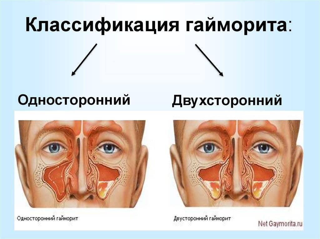 Гайморит у взрослых: симптомы и методы лечения