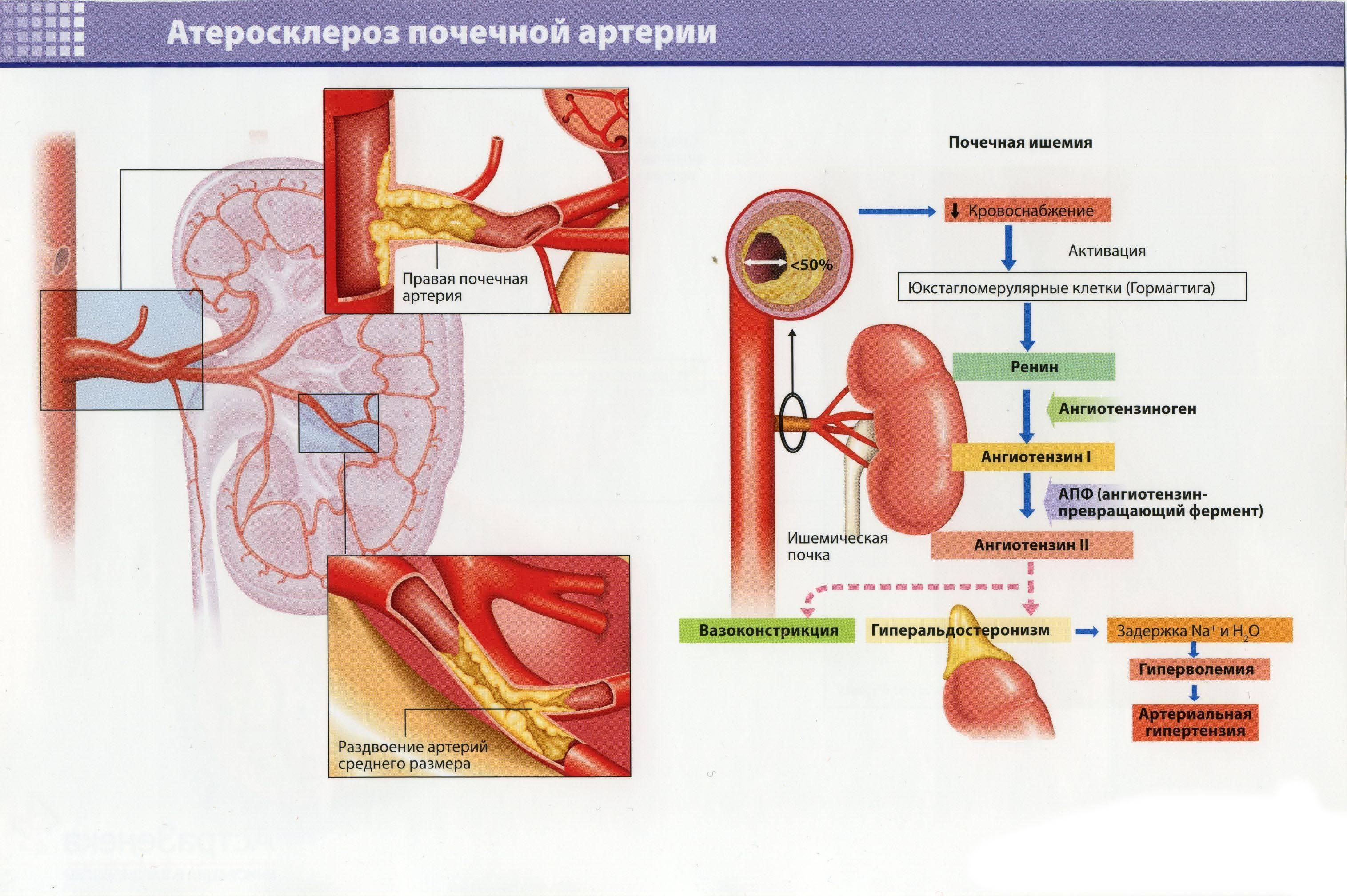 Особенности и лечение атеросклероза почечных артерий