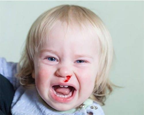 У ребенка сопли с кровью