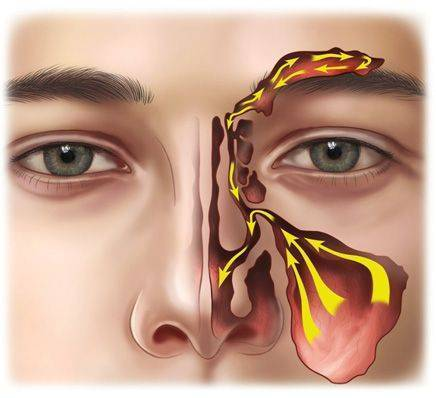 Правильное лечение ринита и синусита
