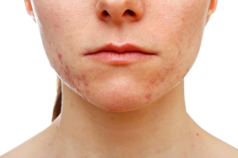 Герпес на лице: фото, симптомы, чем лечить в домашних условиях?