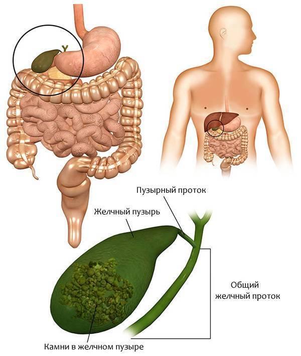 Отключенный желчный пузырь – симптомы, диагностика и лечение