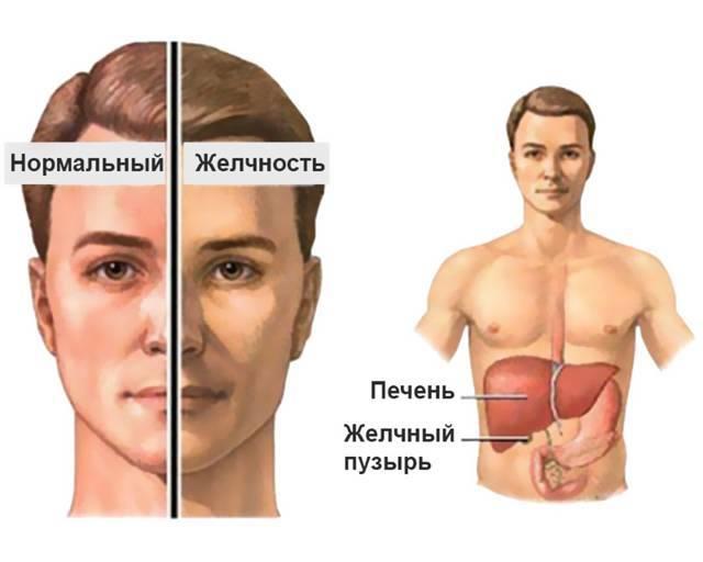 Билирубин показатели при циррозе печени
