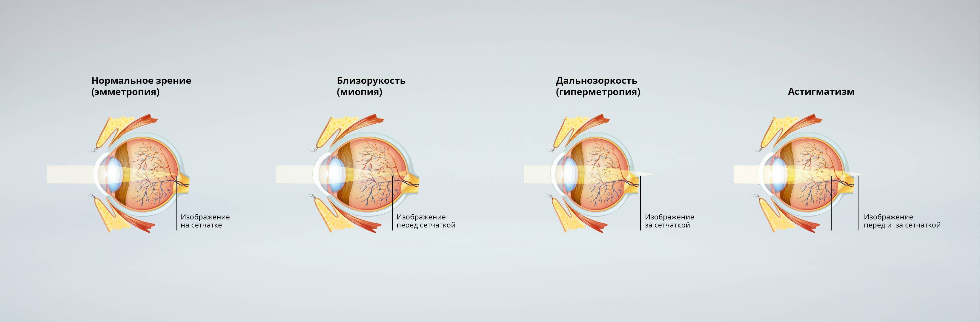 Зрение при беременности | здоровье беременных