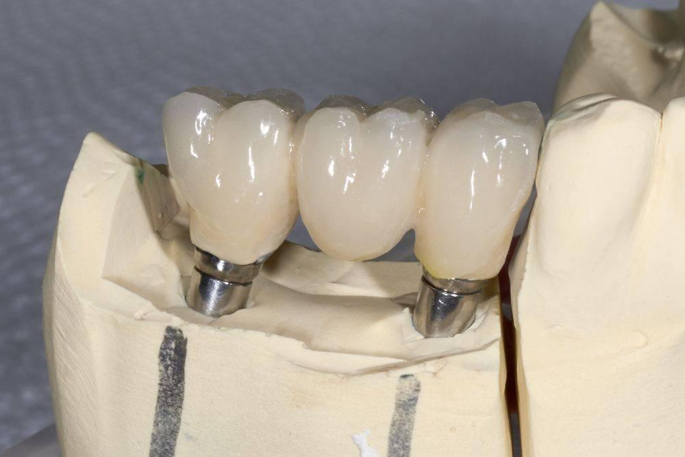 Какие коронки на зубы лучше?
