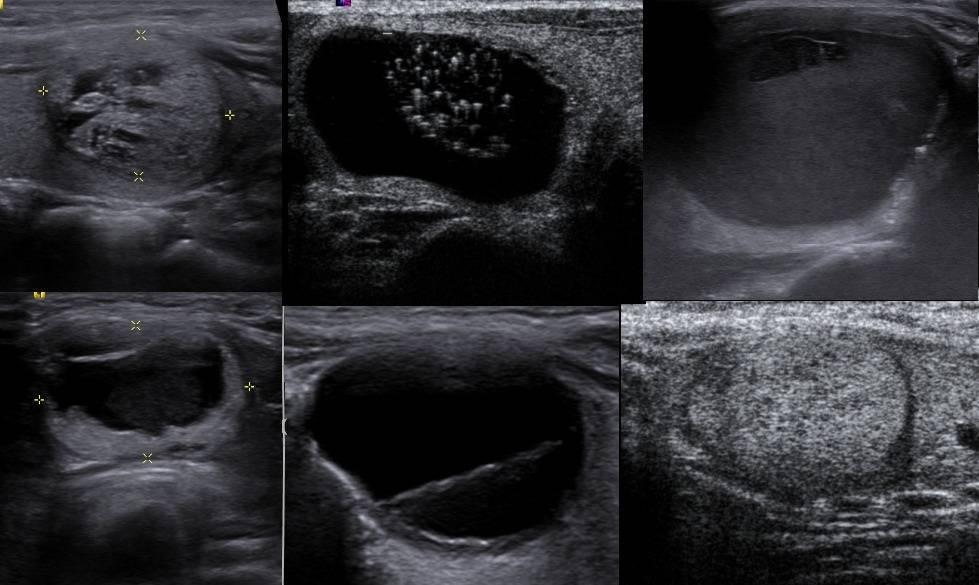 коллоид щитовидной железы