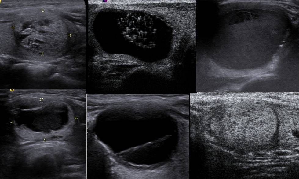 Коллоидные кисты щитовидной железы у ребенка лечение