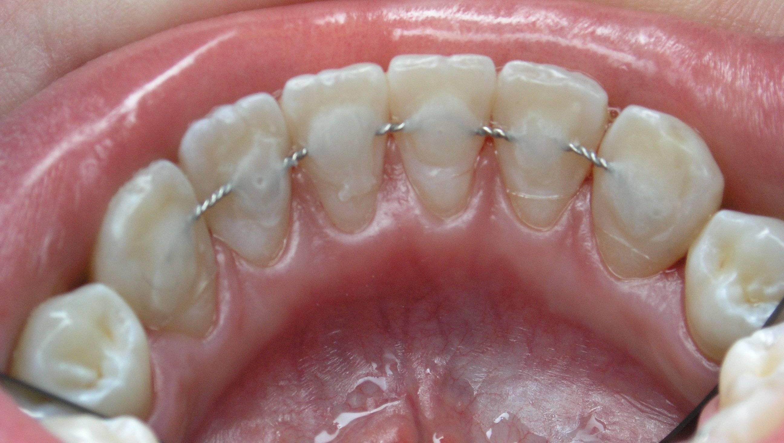 как снимают ретейнер с зубов
