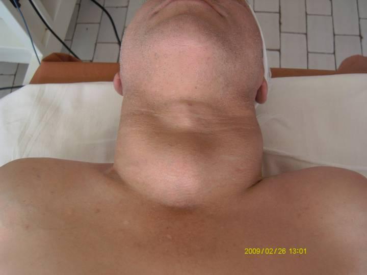 рак щитовидной железы сколько живут