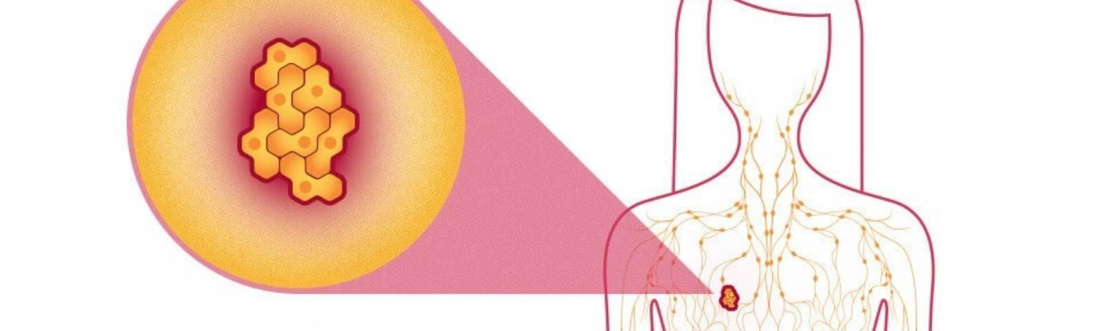 Почему увеличиваются и воспаляются лимфоузлы при мастопатии и как с этим бороться?