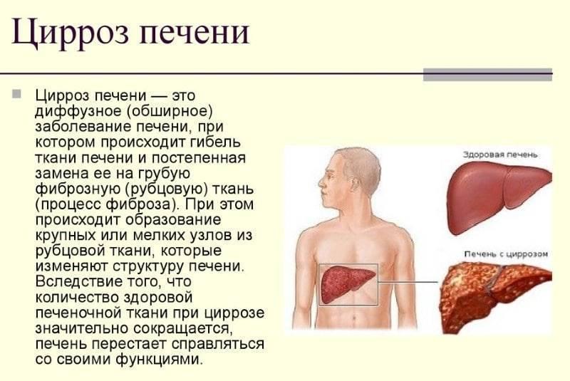 Смерть от цирроза