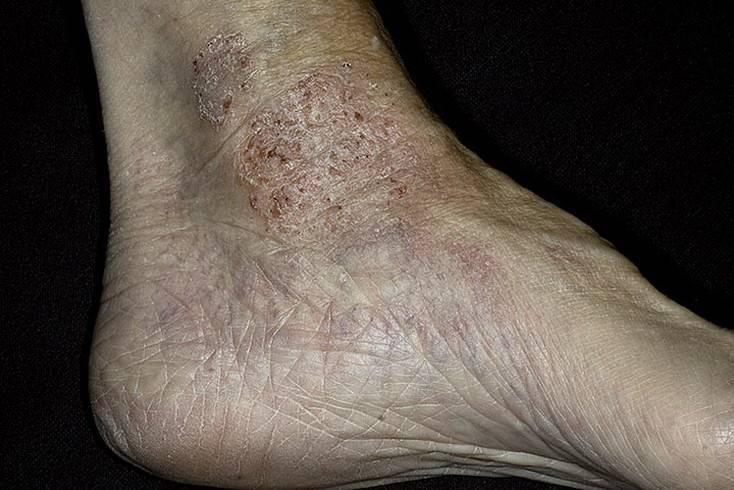 дерматиты кожи ног