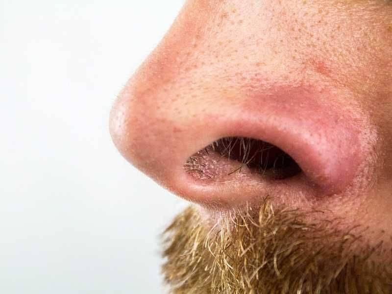 как избавиться от стафилококка в носу