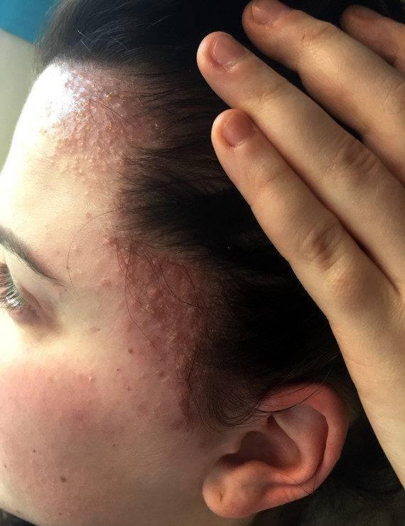 Псориаз ушей — лечение, симптомы, причины