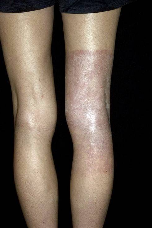 дерматит на ступнях ног