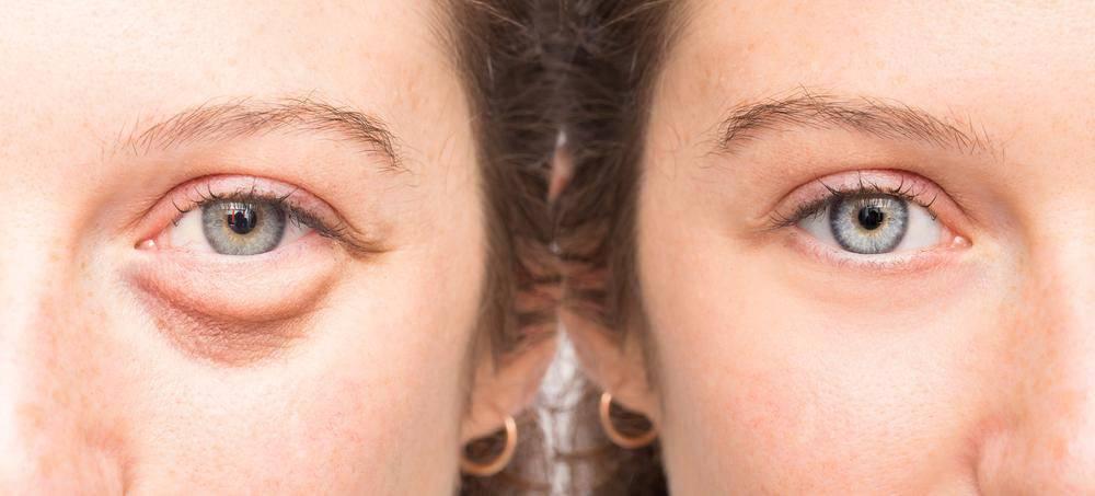 Как сделать красные глаза? полезные советы