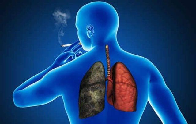 Причины возникновения кашля у курильщиков и как от него избавиться