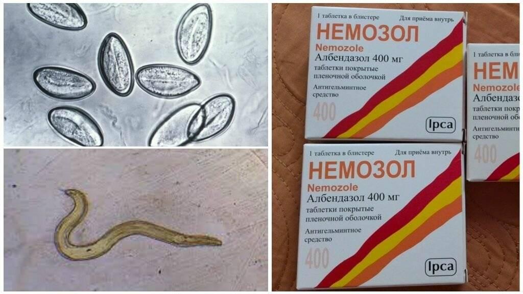 Средство от паразитов в организме человека: аптечные препараты, средства из 1 таблетки, народные рецепты устранения и для профилактики
