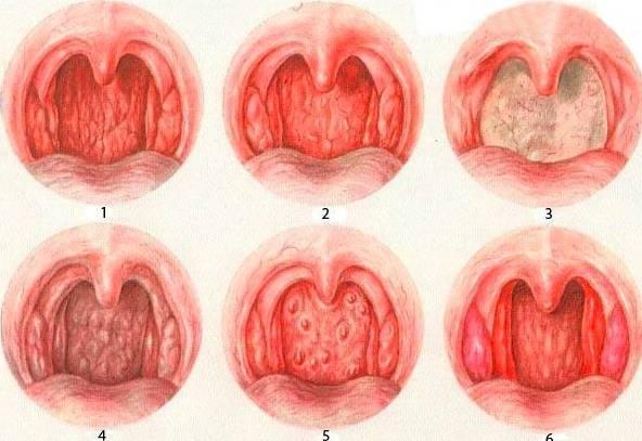 Причины аллергического фарингита: симптомы и методы борьбы