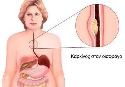 Лечение рака горла солью