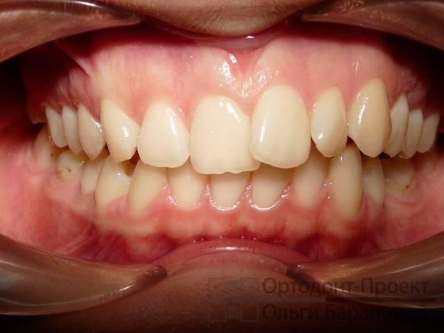 5 эффективных способов, которые помогут исправить кривые зубы