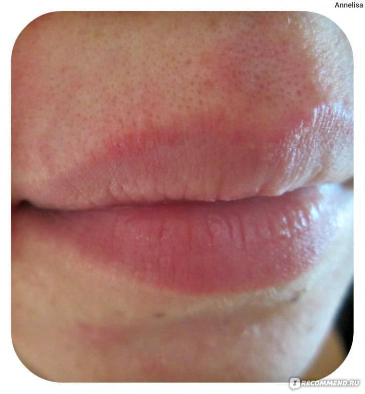 Пероральный дерматит на губах фото