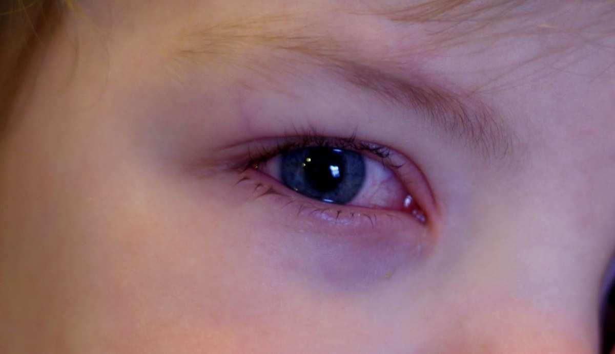 Покраснение в уголке глаза с внешней стороны