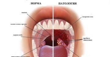 Папилломы в горле – лечение папилломатоза гортани