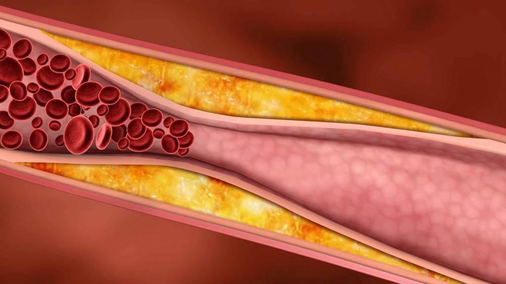 Диета при гиперхолестеринемии: особенности питания, примерное меню