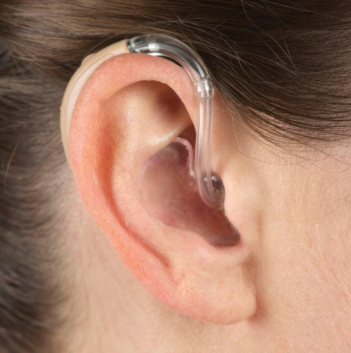 слуховой аппарат невидимый