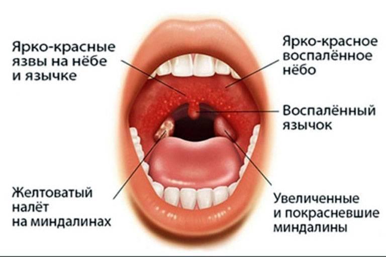 вирусная ангина у взрослых лечение