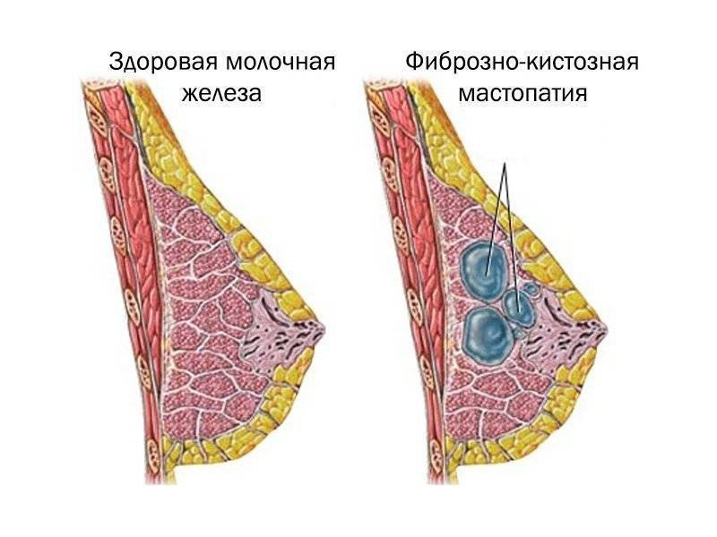 фиброматозная мастопатия