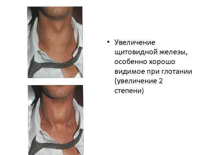 Гиперплазия щитовидной железы 1 и 2 степени