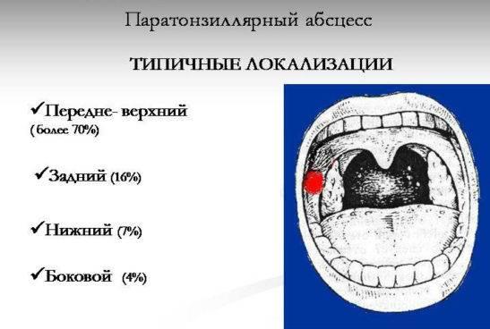 абсцесс паратонзиллярный горла