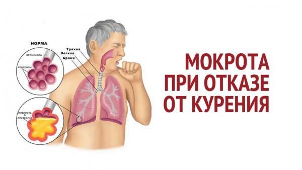 Кашель после отказа от курения, сколько длится и как от него избавиться