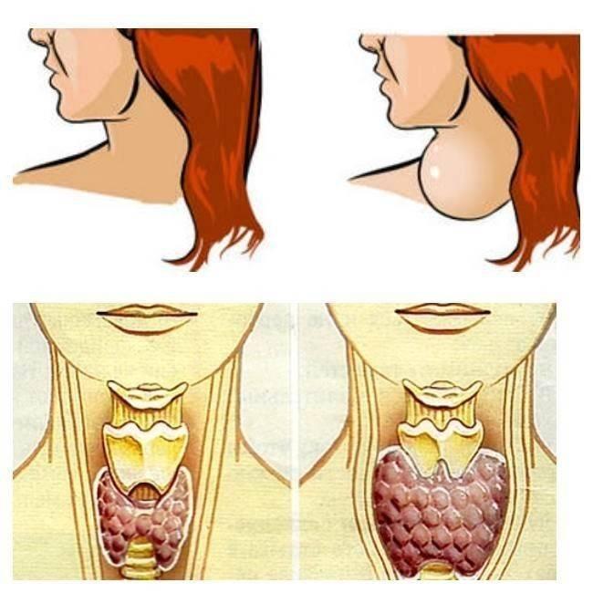 узлы на щитовидной железе гормоны в норме