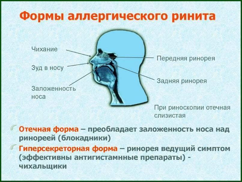 Причины, симптомы и лечение сухого ринита у взрослых