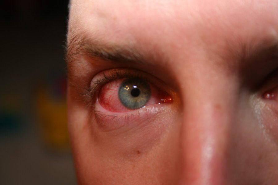 аллергический конъюнктивит симптомы и лечение