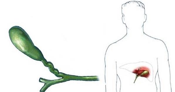 Перегиб или загиб желчного пузыря у ребенка
