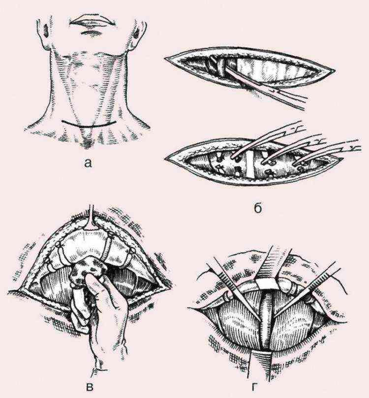Сколько по времени длится операция на щитовидной железе