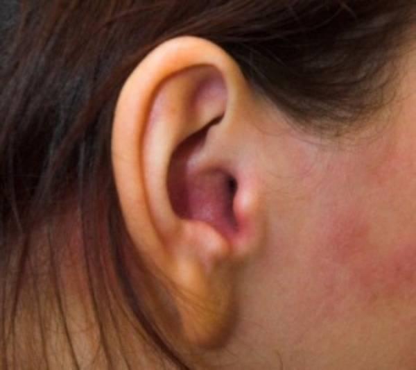 псориаз в ушах лечение