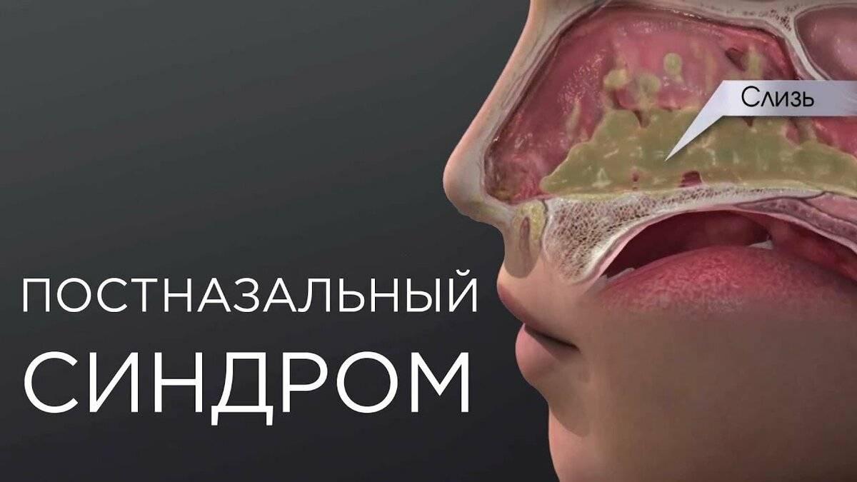 сопли в горле лечение
