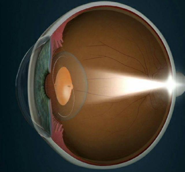 Искусственный хрусталик глаза: поводы для замены и особенности операции